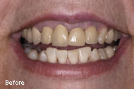 Dental Crowns Before After Pictures