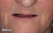 Cosmetic Dentures Before After